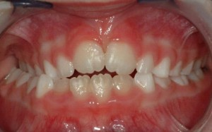 cross bite orthodontics